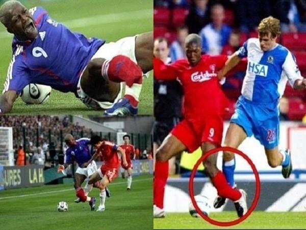 2 lần Djibril Cisse bị gãy chân đều đến từ vị trí ống đồng của mình.